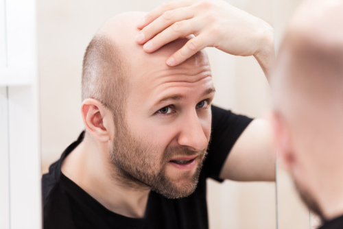 30 Reasons Why You Should Quit Smoking and Start Vaping - baldness
